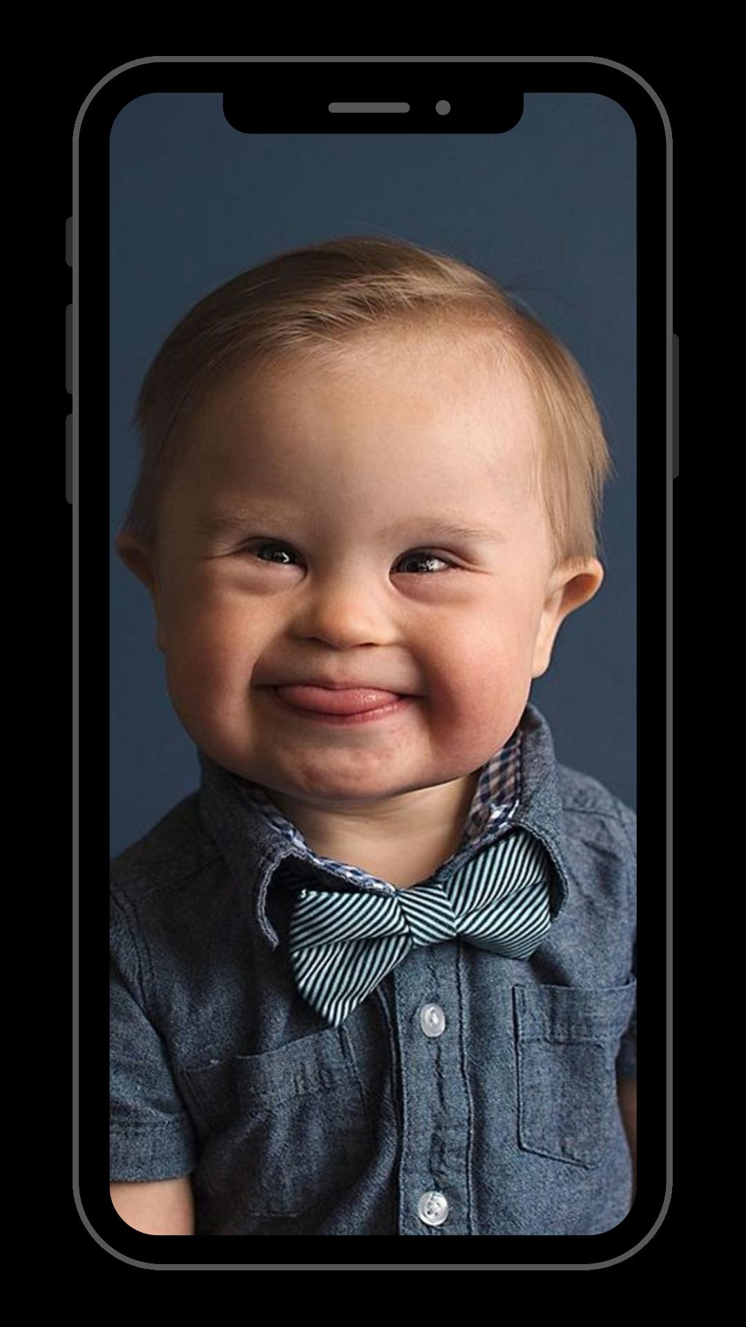 Foto de celular com a imagem de criança portadora de síndrome de down